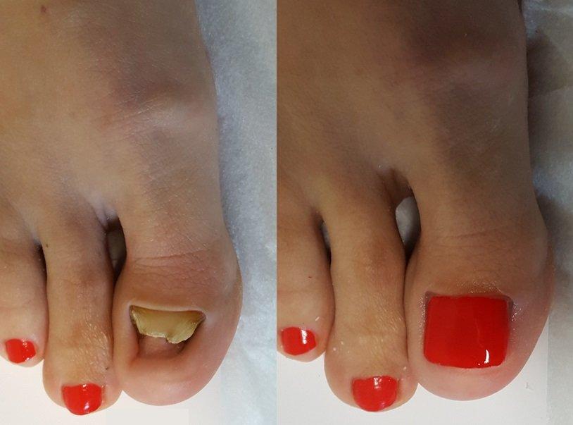 Odbudowa płytki paznokciowej