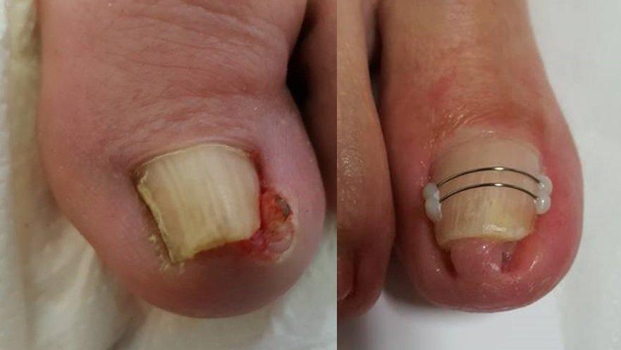 Wkręcające się paznokcie leczenie Poznań
