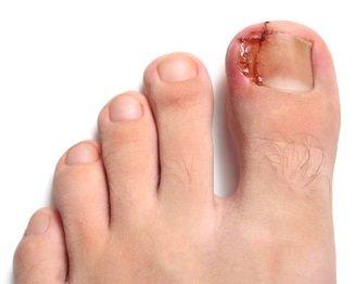 Wrastające paznokcie poznań lecznie
