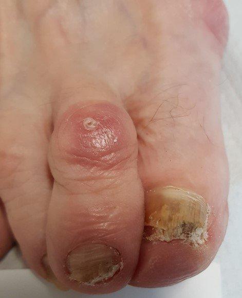 Grzybica paznokci leczenie